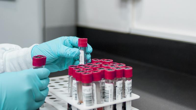 Коронавирус инфекциясымен ауырудың жаңа оқиғасы тіркелген жоқ