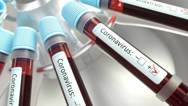 Қарағанды облысында 6 адамнан коронавирус инфекциясы анықталды