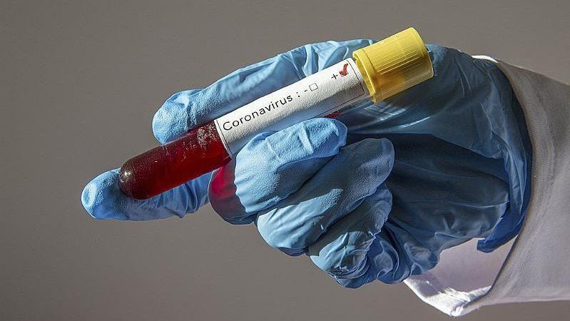 Қарағанды облысында 4 адамнан коронавирус табылды