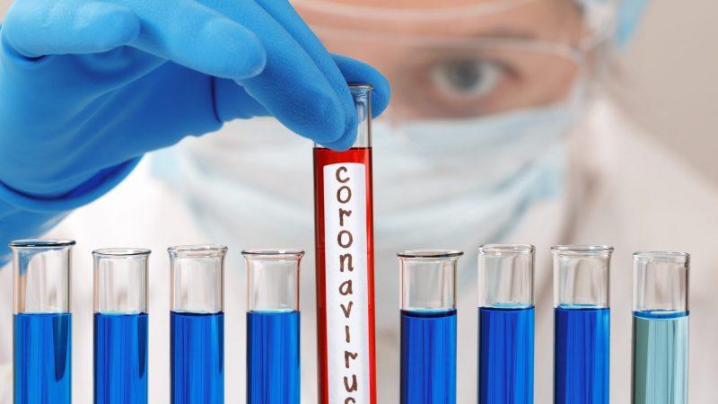 Қарағанды облысында коронавирус жұқтырудың 5 жағдайы тіркелді