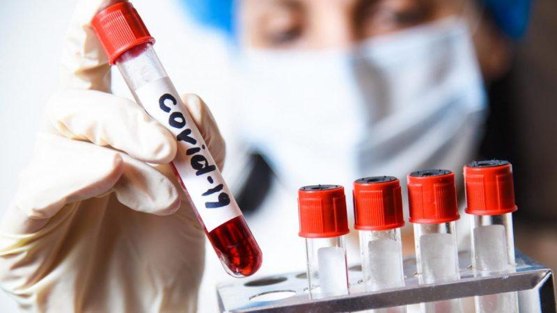 Қарағандыда 6 айлық сәби коронавирус жұқтырған