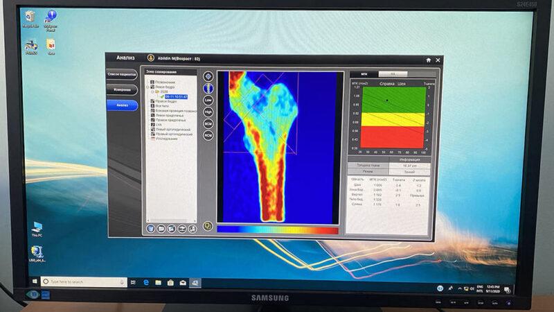 Қарағандыда остеопорозды ерте кезеңде анықтайтын аппарат пайда болды